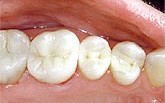 These are teeth that have been restored by a mercury-free dentist.