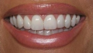 This smile is an example of Lumineer porcelain veneers.