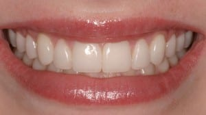This patient used another brand of ultra-thin veneers.